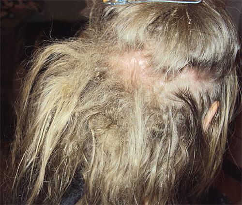 Белые личинки в волосах