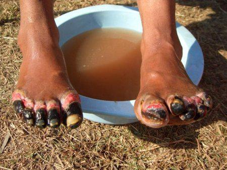 Гангрена пальцев ног