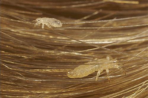 откуда берутся паразиты в человеке