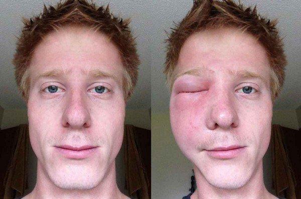 Последствие укуса шершня в область глаза
