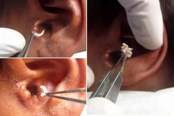 Личинки в ухе человека