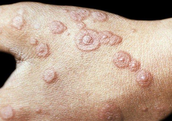 Характерные признаки болезни на руках