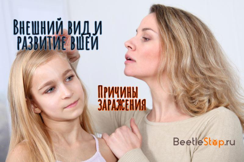 Вши у ребенка