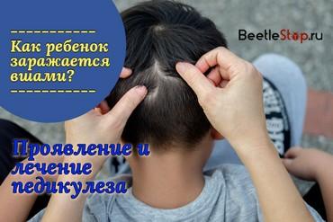 Причина вшей в голове у ребенка
